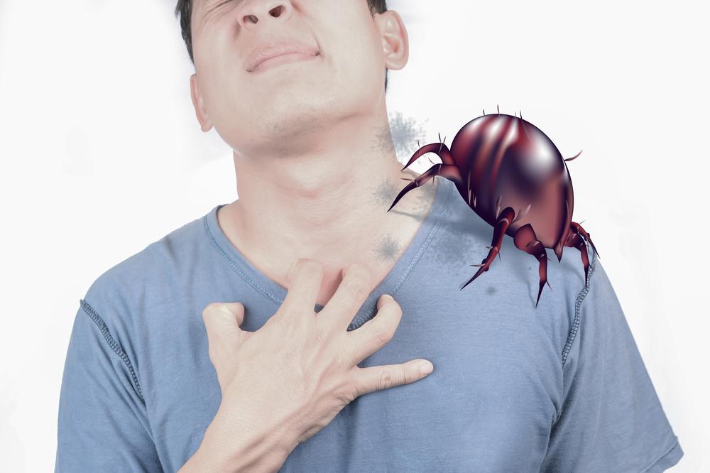 Les 5 astuces pour éviter les allergies aux acariens de poussière de maison
